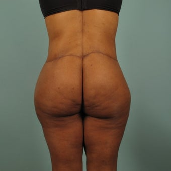 35-44 year old woman treated with Body Lift
