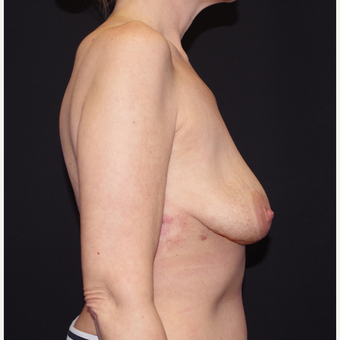 35-44 year old woman treated with Breast Implant Removal after 3741661