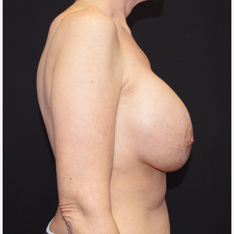 35-44 year old woman treated with Breast Implant Removal before 3741661