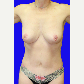45-54 year old woman treated with Mommy Makeover after 3519816
