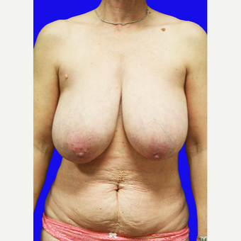 45-54 year old woman treated with Mommy Makeover before 3519816