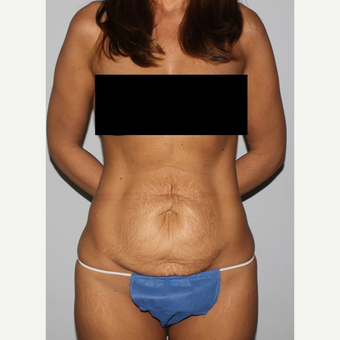 35-44 year old fit woman treated with Tummy Tuck before 3500942