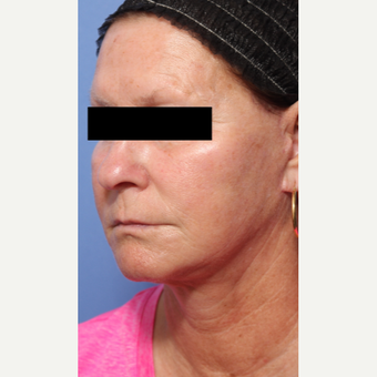 55-64 year old woman treated with Lower Face Lift after 3026924