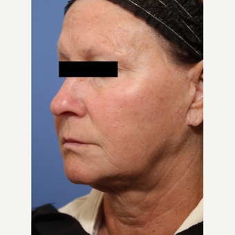 55-64 year old woman treated with Lower Face Lift before 3026924