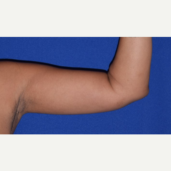 35-44 year old woman's arms treated with Liposuction after 2978409