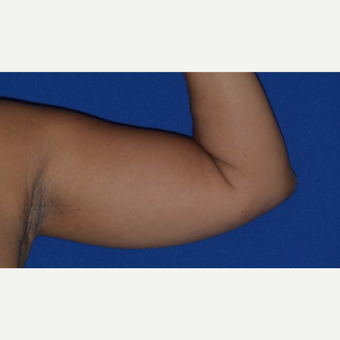 35-44 year old woman's arms treated with Liposuction before 2978409