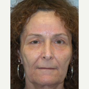 55-64 year old woman treated with Sculptra before 3406507
