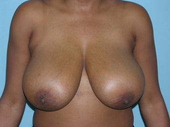 Breast Reduction before 168472