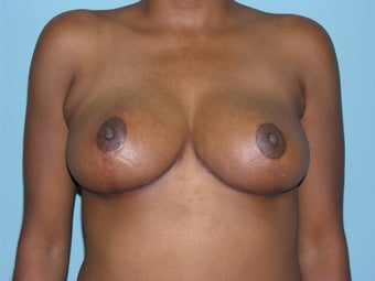 Breast Reduction after 168472
