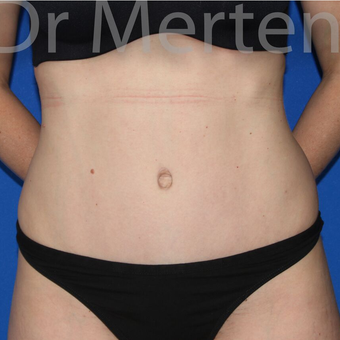 Tummy Tuck after 3599499