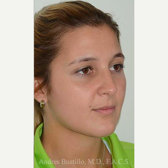 23 year old woman treated with Rhinoplasty after 3460880