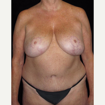 57 year old woman treated with Mommy Makeover after 3092851