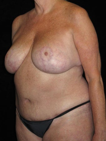 57 year old woman treated with Mommy Makeover 3092851