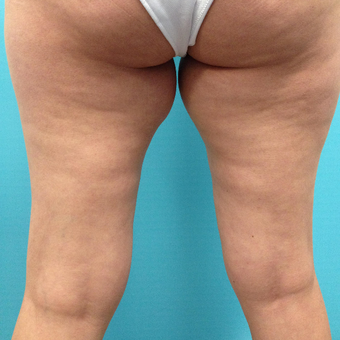 35-44 year old woman treated with Slim Lipo before 3136103
