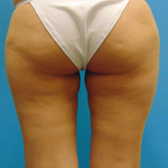 35-44 year old woman treated with Slim Lipo after 3136103
