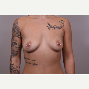 35-44 year old woman treated with Breast Augmentation before 3768942