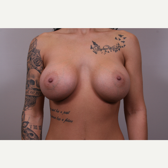 35-44 year old woman treated with Breast Augmentation after 3768942