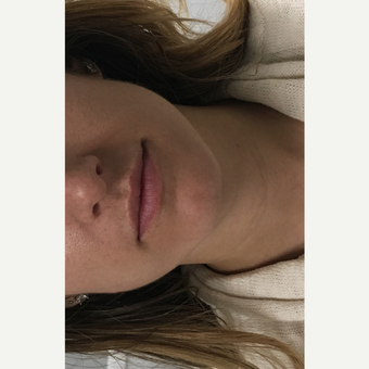25-34 year old woman treated with Restylane Silk before 3837059