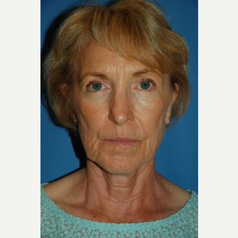 55-64 year old woman treated with Facelift before 3610791