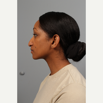 25-34 year old woman treated with Rhinoplasty before 3723858