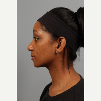 25-34 year old woman treated with Rhinoplasty after 3723858