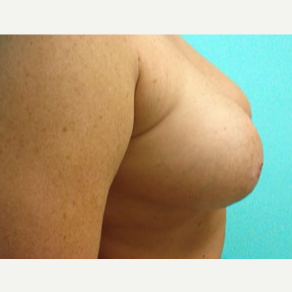 35-44 year old woman treated with Breast Augmentation after 3168221