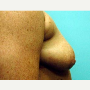 35-44 year old woman treated with Breast Augmentation before 3168221