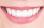 25-34 year old woman treated with Porcelain Veneers-  6 Porcelain Veneers & 4 Porcelain Onlays after 2293365