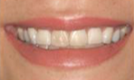 25-34 year old woman treated with Porcelain Veneers-  6 Porcelain Veneers & 4 Porcelain Onlays before 2293365