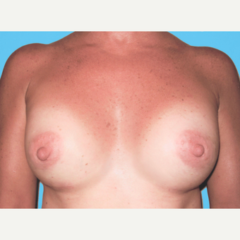Breast Augmentation after 3732673