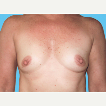 Breast Augmentation before 3732673