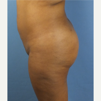 45-54 year old woman treated with Brazilian Butt Lift after 3141346