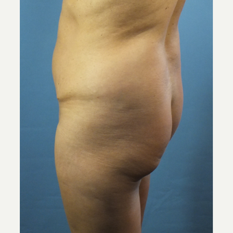 45-54 year old woman treated with Brazilian Butt Lift before 3141346