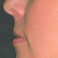 25-34 year old woman treated with Lip Implants