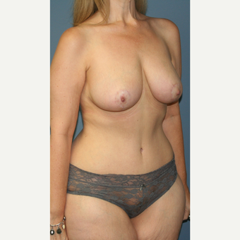 35-44 year old woman treated with Mommy Makeover after 3502419