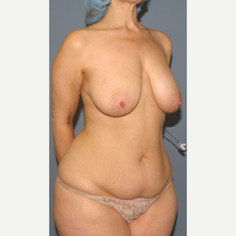35-44 year old woman treated with Mommy Makeover before 3502419