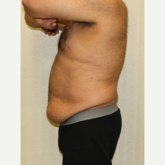 55-64 year old man treated with Male Tummy Tuck before 3286199