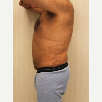55-64 year old man treated with Male Tummy Tuck after 3286199