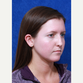 18-24 year old woman treated with Rhinoplasty before 3109145