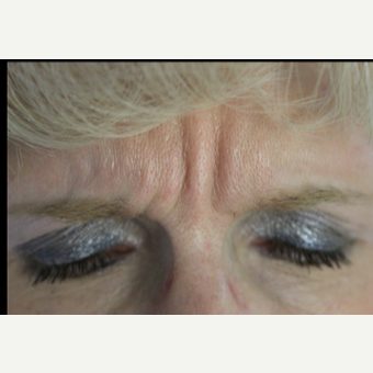 45-54 year old woman treated with Botox before 3132110