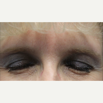 45-54 year old woman treated with Botox after 3132110