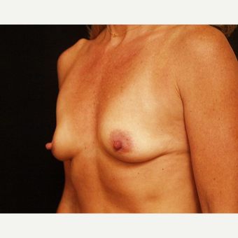 35-44 year old woman treated with Breast Augmentation before 3576335