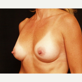 35-44 year old woman treated with Breast Augmentation after 3576335