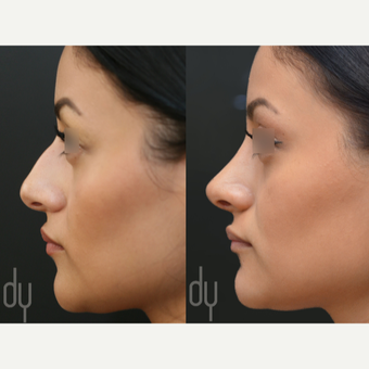 Primary Open Rhinoplasty and Septoplasty before 3322576