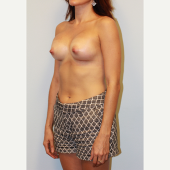25-34 year old woman treated with Breast Implants after 3412682