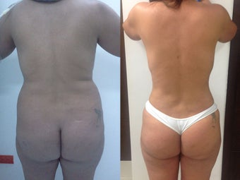 Liposculpture and Abdominoplasty