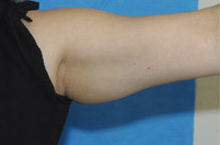 Arm Liposuction before 652126