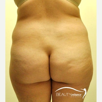 35-44 year old woman treated with Tummy Tuck before 2533504