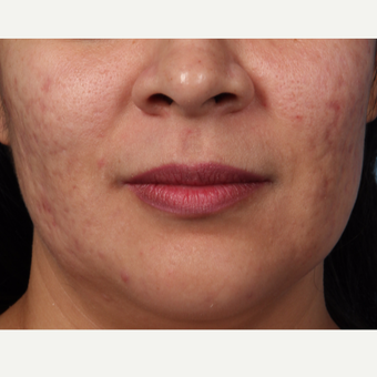 25-34 year old woman treated with Acne Scars Treatment before 3321131