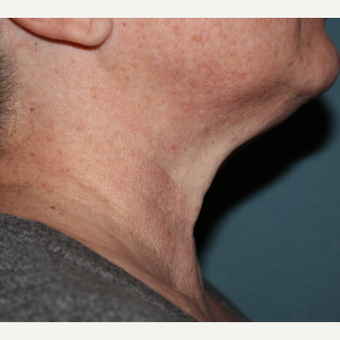 55-64 year old female 1 treatment with Kybella after 3185592